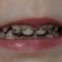Черный налет на зубах у детей