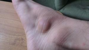 Шишка на ноге фото