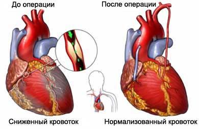 Что такое коронарное шунтирование сердца