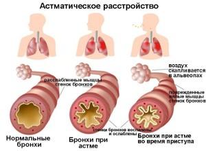 астма приступ