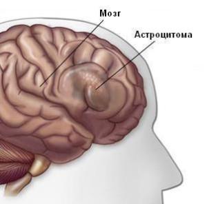 астроцитома