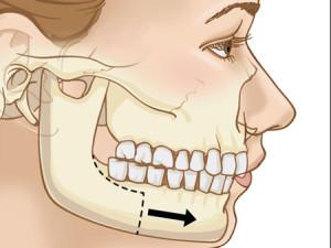 Deformări și defecte ale maxilarului superior și inferior: cauze, simptome. Cum se tratează