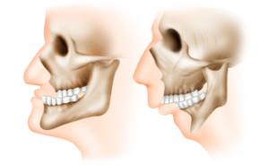 деформации и дефекты верхней и нижней челюсти