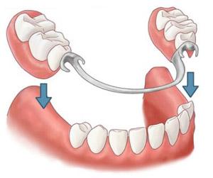 зубной протез