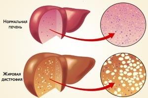 инфильтрация печени