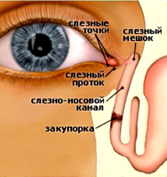 лечение дакриоцистита