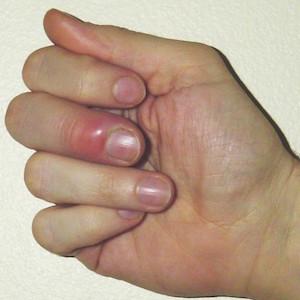 нарыв на пальце возле ногтя
