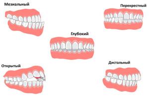 неправильное развитие челюсти