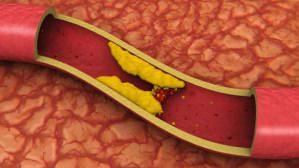 норма холестерина в крови у женщин после 40 лет