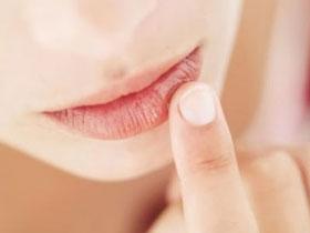 облазят губы