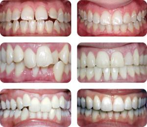 ортодонтология