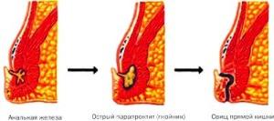 парапроктит абсцесс