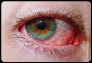 покраснения глазного яблока