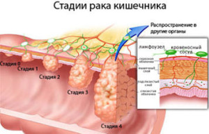 рак прямой кишки симптомы