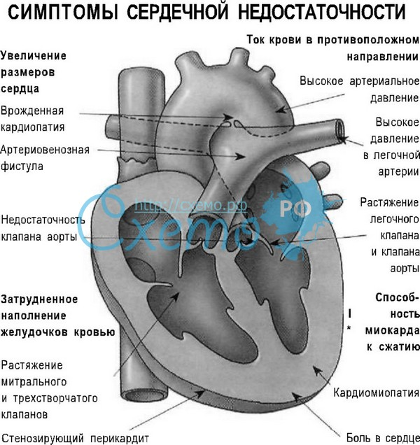 сердечной недостаточности