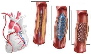 Показания к стентированию сосудов сердца