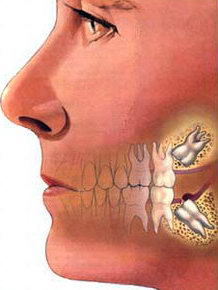 удалении зуба мудрости