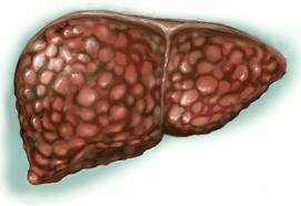 фиброза печени