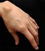 шишка на руке