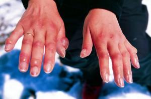 1356186665_frostbitten_hands