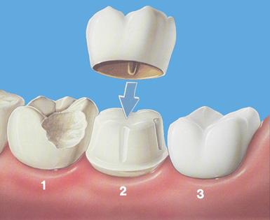 Коронка на зуб на временном цементе