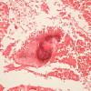 220px-Actinomycosis_GRAM'S