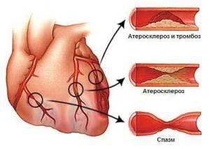 angiopl6