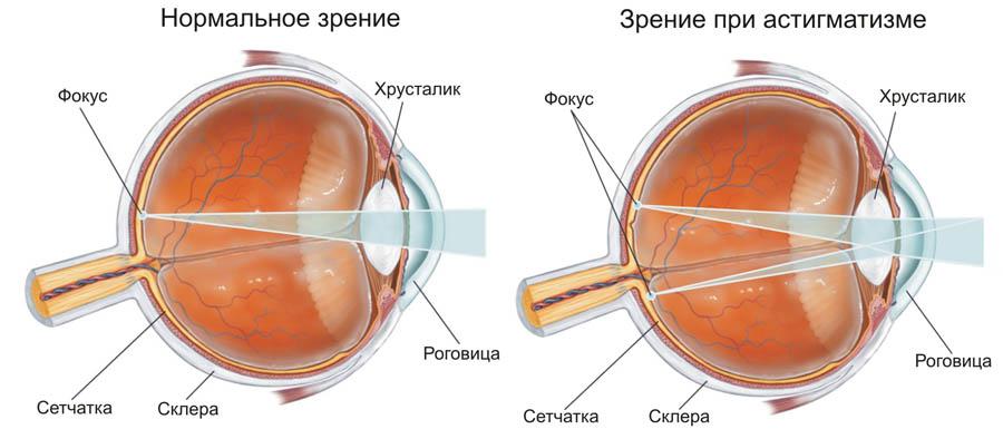 Центр лазерной коррекции зрения и микрохирургии отзывы
