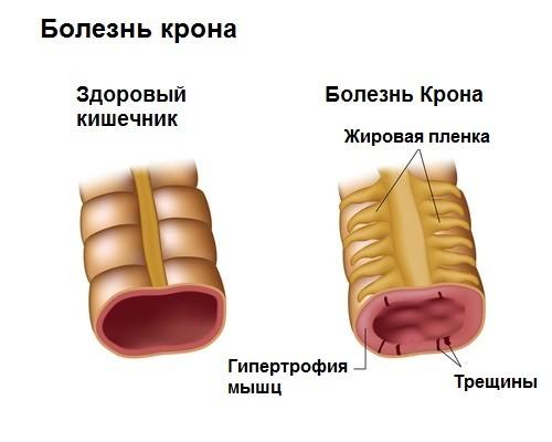 bolezn-krona-1