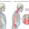 Схема скелета при болезни