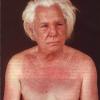 dermatomiozit4