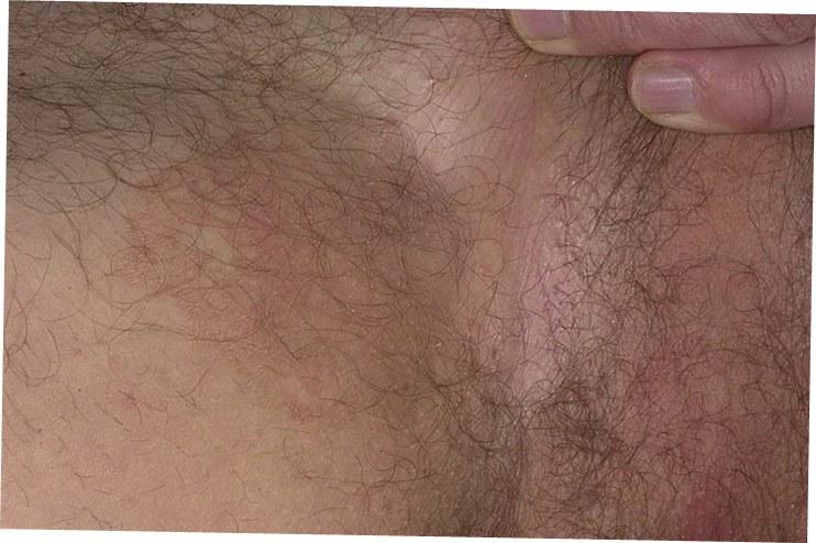 шелушение в паху при эпидермофитии
