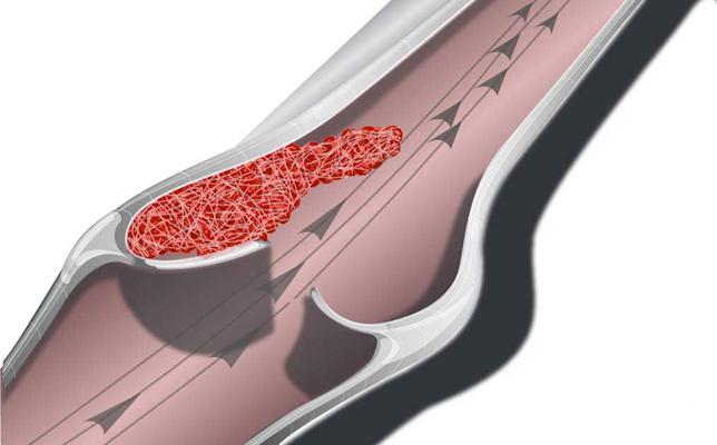 Как лечить варикоз внутренний