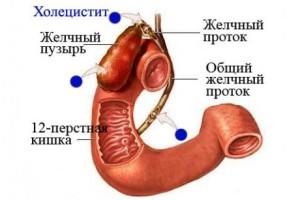 holetsistit-simptomyi-prichinyi-lechenie-460x307