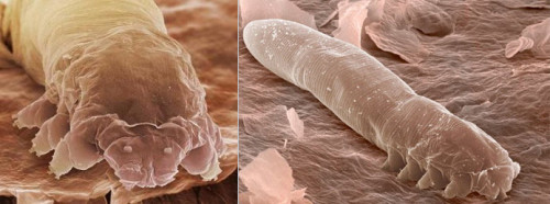kles-demodex
