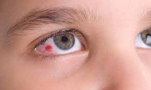 krovoizliyanie-v-glaz-osnovnye-simptomy-i-priznaki