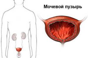 mochevoi