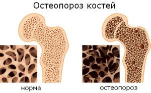 osteoporoz-kstok-simptomi-zahvoryuvannya-principi-lkuvannya_731