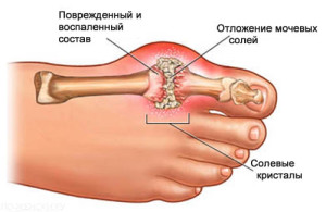 podagra-simptomy-2