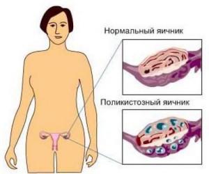 polikistoz-yaichnikov-4