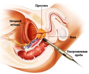 prostatit02