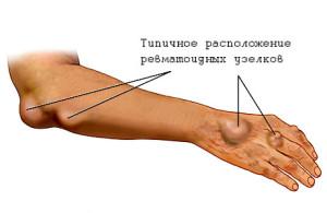 reumatism-local