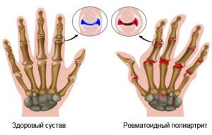 revmatoyidniy-polartrit-prichini-simptomi-dagnostika-lkuvannya-narodn-zasobi-dyeta-foto_188