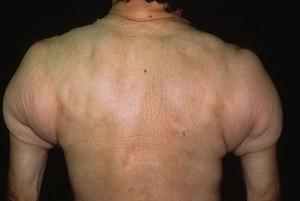 sklerodermija_20-foto
