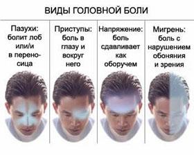 vidy_golovnaya_bol