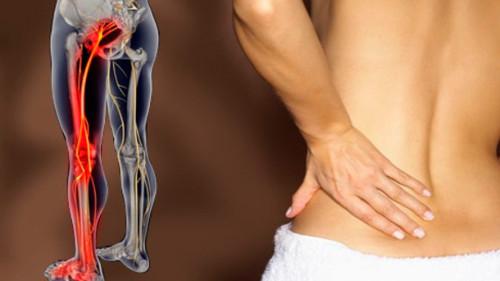 vospalilsja-sedalishhnyj-nerv